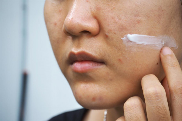 Acne Cream Application